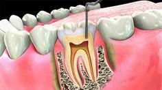 traitement radiculaire dentaire