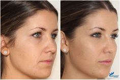 Before and after cheek and lip enhancement with dermal fillers