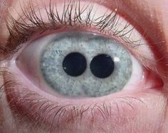 """Pupula Duplex is a latin term which means double pupil. Its often referred by some by the following terms """"evil eye"""", double iris and in medical literature as Polycoria."""