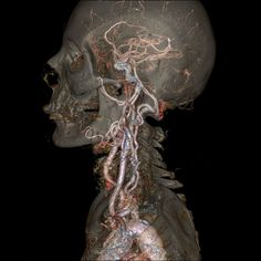 Revolution CT Scan image of the skull and carotid arteries.