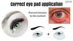 1c8b299ffe7 IMPORTANT* CORRECT EYE PAD APPLICATION - prevent the bruised eyeball. Semi  Permanent Eyelash ExtensionsSemi ...