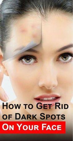 How to Get Rid of Dark Spots on Your Face - Be Queen - #Dark #darkspots #Face #Queen #Rid #Spots #SkinCareTipsForDarkSpots #DarkArmpits Sun Spots On Skin, Black Spots On Face, Brown Spots On Hands, Dark Spots, Perfectly Posh, Sunspots On Face, Spots On Forehead, Dark Under Eye, Love Your Skin