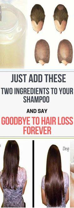 Natural Anti Hair Loss Remedy