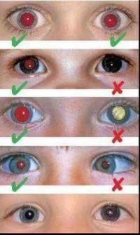 8877de7523 El cáncer de ojos se puede detectar con una fotografía | opto | Cancer de  ojo, Optometría, Salud visual