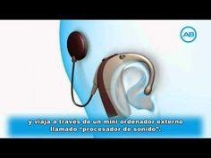 La sordera y el implante coclear