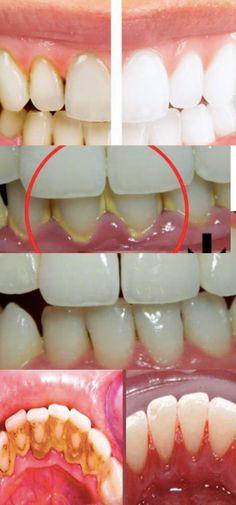 Como Remover a Placa Bacteriana dos Dentes em Apenas 1 Minuto #placadente #limpardente #placadentaria #limpezadental #profilaxia