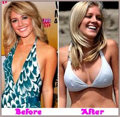 Heidi Montag Plastic Surgery & Breast Implants F Cups Heidi Montag Plastic Surgery, Plastic Surgery Pictures, Celebrities Before And After, Celebrity Plastic Surgery, Famous Celebrities, Famous Women, Famous People, Beauty Hacks, Breast