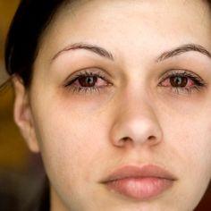 Sådan ved du om du har brug for at få mere søvn - Bedre Livsstil Kawasaki Disease, Sinus Remedies, Natural Remedies, Self Treatment, Health Options, Ankylosing Spondylitis, Asthma Symptoms, Psoriatic Arthritis, Sore Eyes