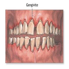 5 Home Remedies For Gingivitis - Natural Treatments & Cure For Gingivitis Natural Health Remedies, Natural Cures, Natural Healing, Herbal Remedies, Gum Health, Dental Health, Health Tips, Dental Care, Health Care