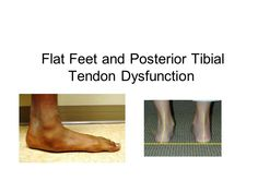 Flat Feet and Posterior Tibial Tendon Dysfunction
