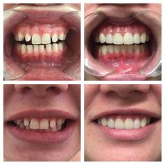Porcelain veneers with our INTEREST FREE payment plans can be as little as $60 per week. Call 55108696 to book your FREE SMILE CONSULT and take the first step towards your new smile! Follow @ismiledc Link in bio #cosmeticdentistry #goldcoast #hopeisland #australia #queensland #smile #smiles #teeth #teethwhitening #dental #dentistry #dentist #veneer #love #newyou #health #healthy #smilemakeover #confidence #selfcare #friends #lips #whitesmile #new #painfree #happiness by ismiledc Our Cosmetic…