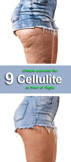 Exercise 9 Ultimate Exercises for Cellulite on Front of Thighs - What is Cellulite? Cellulite is a term for the formation of lumps and dimples in the skin. Common names for cellulite are orange-peel Thigh Cellulite, What Is Cellulite, Causes Of Cellulite, Cellulite Exercises, Cellulite Cream, Reduce Cellulite, Thigh Exercises, Cellulite Workout, Cellulite Remedies