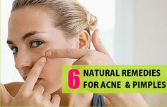 Natural Herbal Remedies for Acne and Pimples