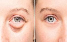Evening Baggy Eye Solution That Removes Puffiness FAST They go by many names: bags dark circles or puffy eyes. No matter what you Dry Eyes Causes, Eye Infections, Old Makeup, Beauty Makeup, Eyes Problems, Puffy Eyes, Quites, Dark Circles, Skin Care