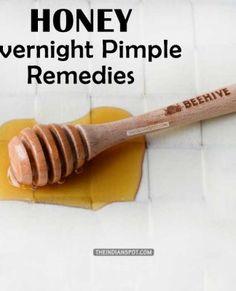 HONEY TO TREAT PIMPLE OVERNIGHT