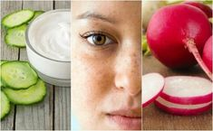 How to reduce the stains of your face with 5 remedies of natural origin Aloe Vera, Health Tips, Watermelon, Hair Beauty, Stains, Smoothie, Cosmetics, Fruit, Crunches