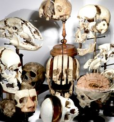 """Beauchene or """"exploded skull"""" is produced as an anatomical study and used primarily as a teaching aid. They are difficult and costly to produce. These skulls were named for their mid-1800′s creator Claude Beauchene."""