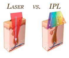 Laser vs. IPL Hair Removal: Elite Plastic and Cosmetic Surgery