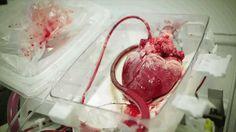 El latido de un corazón humano mantenido en actividad artificialmente…