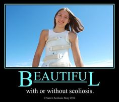 Beautiful... with or without scoliosis... <3