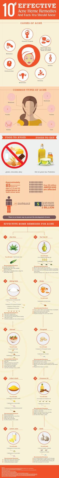 10 Effective Acne Remedies and Facts You Should Know http://www.liveinfographic.com/i/10-effective-acne-remedies-and-facts-you-should-know/ Tags: #infographic  #infographics #popular #pinterest #pinterestinfographics