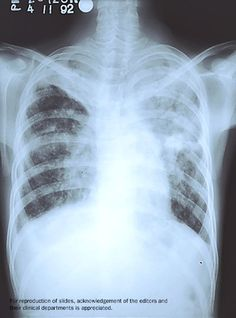 A chest x-ray from a person with tuberculosis (in right upper part of the photo.). 7 Truths about TB that affect everyone.