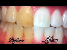 Une dent blanc éblouissant est ce que nous tous souhaité. Il fait une forte impression quand vous sourire avec des dents blanches. Beaucoup de gens confrontés à des problèmes dentaires comme les dents jaunes, des cavités et mauvaise odeur qui les rendent...