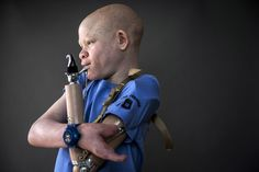 """""""Superstition leads many to believe albino children are ghosts who bring bad luck. Some believe the limbs are more potent if the victims scream during amputation, according to a 2013 United Nations report. Albinism, Environmental Health, Body Parts, Children, Hunters, Festo, United Nations, Ghosts, Tanzania"""