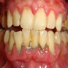 Effective Natural Remedies And Cures For Gum Disease