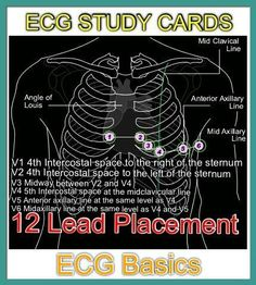 Acls megacode review study cards