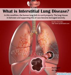 Lungs And Psoriasisfasrweek