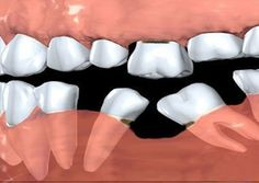 This would happen if you dont fill the gap timely #FrandsendDental