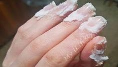 Sodium bicarbonate is an amazing ingredient that has many health benefits ranging from fighting the flu and cold, to oral hygiene and even cancer. Baking Soda Nails, Baking Soda Face, Baking Soda Uses, Get Rid Of Cold, Sodium Bicarbonate, Great Nails, Tips & Tricks, Tips Belleza, Oral Hygiene