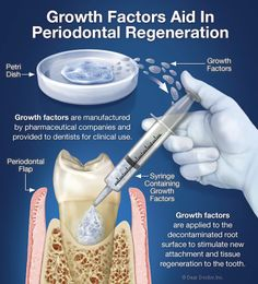 Periodontal Flap Surgery - Inside the periodontal flap