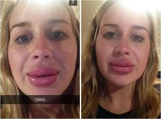 The Kylie Jenner lip challenge: | The 27 Most Important Snapchats Of 2015