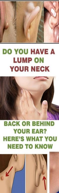 Do you have a lump on your neck, back, or behind your ear? This is what it means! Do you have a lump on your neck, back, or behind your ear? This is what it means! #DoYouHaveALumpOnYourNeckBackOrBehindYourEarThisIsWhatItMeans