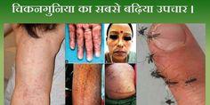 चिकनगुनिया बुखार का सबसे सरल उपचार 70 हजार से अधिक लोगो को दी जा चुकी है ये दवा । Rajiv Dixit