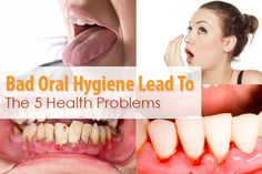 Difficulties like #stainedteeth and yellowing of teeth etc. superficial problems can be treated with a #smilemakeover in London at Camden High Street Dental Practice. However, with problems as serious as periodontitis, plaques and other problems can cause bacterial infection. Along with the pus and bleeding gums, the bacteria can get into the bloodstream and cause problems in the rest of the body. The common health problems that are caused by the poor #oralhygiene are –