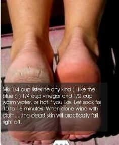 Soft Feet, Natural Ways to Make Feet Soft for Home Remedies Getting dry feet and heels is nobody's ideal of beauty. Today we will discuss some of the top home remedies for soft feet that can help y… Beauty Care, Diy Beauty, Beauty Hacks, Fashion Beauty, Face Beauty, Beauty Ideas, Home Remedies, Natural Remedies, Dry Cracked Feet