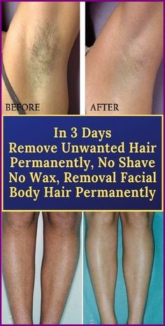 REMOVE UNWANTED HAIR PERMANENTLY IN THREE DAYS, NO SHAVE NO WAX, REMOVAL FACIAL & BODY HAIR PERMANENTLY #HairRemovalMethods Chin Hair Removal, Upper Lip Hair Removal, Hair Removal Remedies, Hair Removal Methods, Remove Unwanted Facial Hair, Unwanted Hair, Permanent Hair Removal Cream, Electrolysis Hair Removal, Best Hair Removal Products