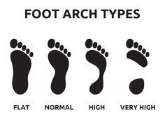 High arch treatment to relieve your pain #podiatry #footcare