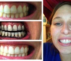 Takto sa zbavíte zubného kameňa a začínajúcich kazov bez drahých procedúr. - TopNaZdravie.sk