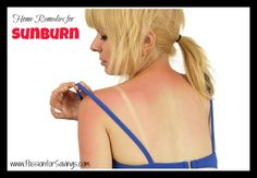 Sunburn Remedies for Treating a Sunburn at Home