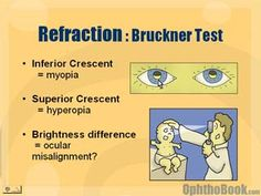 Children are difficult to check vision. Depending upon the age, a child may only blink-to-light, fix and follow, or even read pictures. Here are a couple of tips for checking a kids vision.  Bruckner Test - The Bruckner test is a way to estimate near-sightedness versus hyperopia.