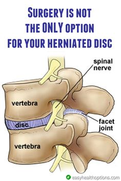 If an MRI shows a herniated disc or nerve root impingement, your physician may want to talk about surgery, but there are non-surgical ways you can heal your back and disc disease.