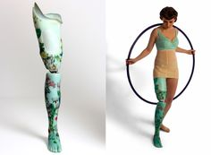 Decorated prosthetic limbs as custom works of art