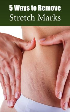 natural ways on how to remove stretch marks naturally and effectively.