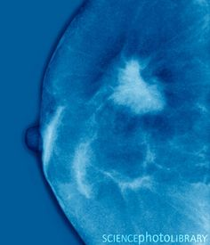 Breast cancer. Mammogram (breast X-ray) of a woman's breast that contains a cancerous tumour (white, right).