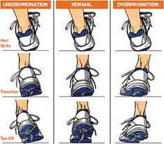 Look for the most wear > Outside of shoe (under pronation) > Inside of shoe (over pronation).