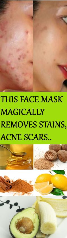 This Face Mask Magically Removes Stains, Acne Scars And Wrinkles After Second Use - Healthy Living Team Best Acne Scar Removal, Scar Removal Cream, Scar Treatment, Skin Treatments, Brown Spots On Face, Dark Spots, Remove Acne, Remove Stains, Homemade Face Masks